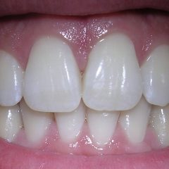 receding gum line grow back