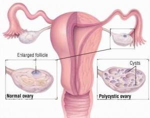 PCOS And PCOS Hypoglycemic Attacks – All You Need To Know
