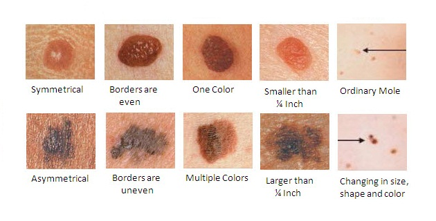 Small Red Moles On Skin Everything You Need To Know