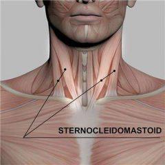 Sternocleidomastoid Pain